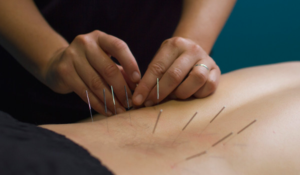 Man getting dry needling therapy