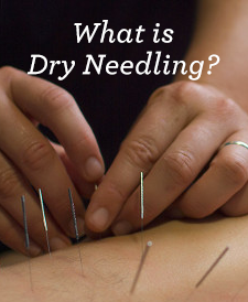 What is dry needling physical therapy?