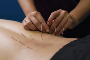 Dry needle for physical therapy